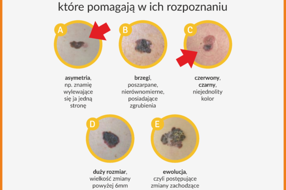 Ogólnopolski program profilaktyki czerniaka